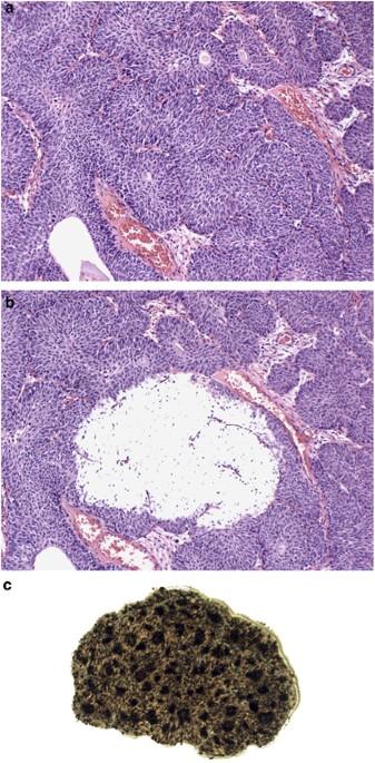 papillomatosis b nh lábszemölcs diagnózis