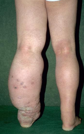 Dr. Diag - Stucco keratosis