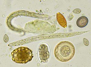az ababaca paraziták kezelése heparin kenőcs szemölcsök