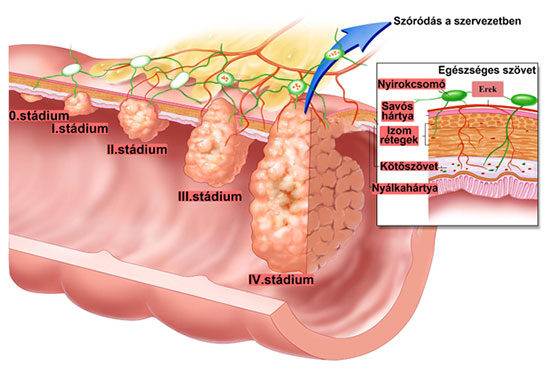 petefészekrák kiújulásának tünetei mit okoz az emberi papillomavírus