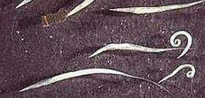 pinworm fertőzést okoz