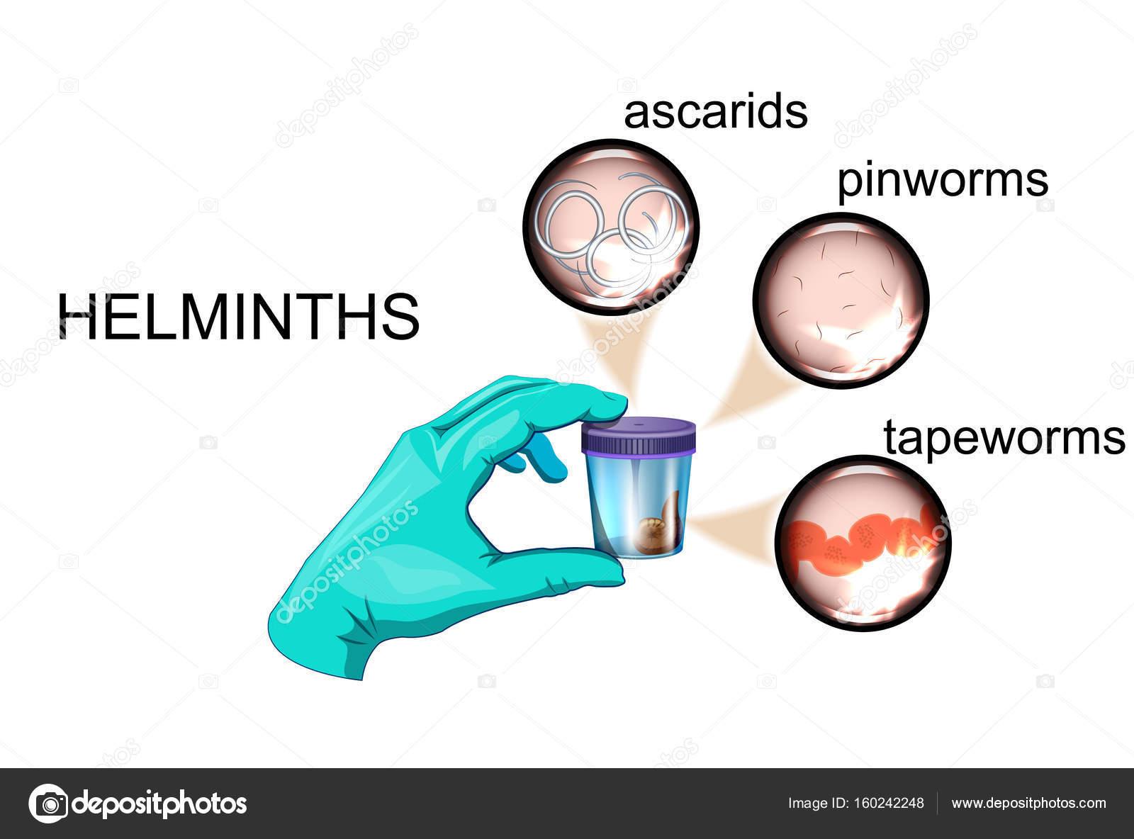 Pinworms betegség életciklusa, Навигация по записям