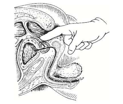 rektális condyloma