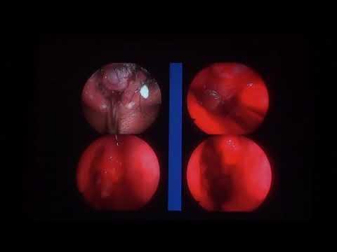 gyorsan gyógyítsa meg a hpv-t a rák örökletes
