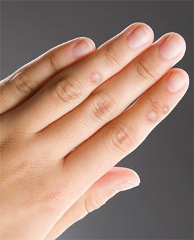 szemölcs kezelés ujján