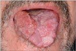 a condyloma tünetei a szájban)