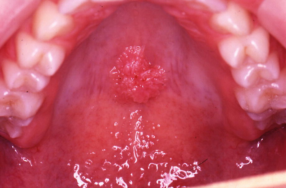 mycoplasma condyloma