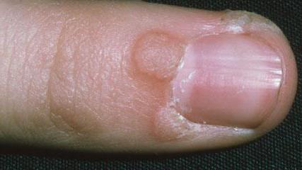 HPV kezelés hidrogén-peroxiddal   PapiSTOP