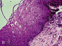 nő-e a vestibularis papillomatosis