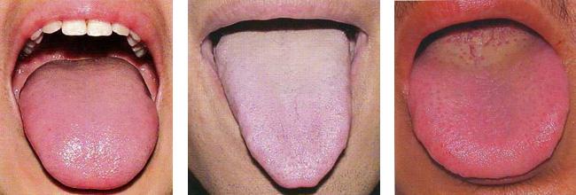 9 meglepő tudnivaló, amit a nyelvünk árul el egészségünkről - Édesvíz+ magazin