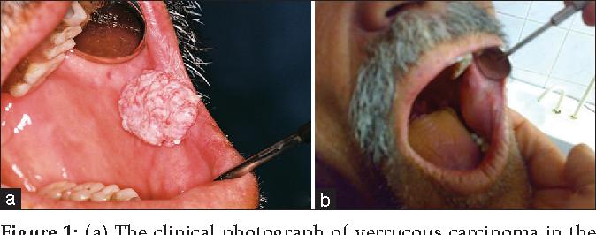 hpv vírus keel