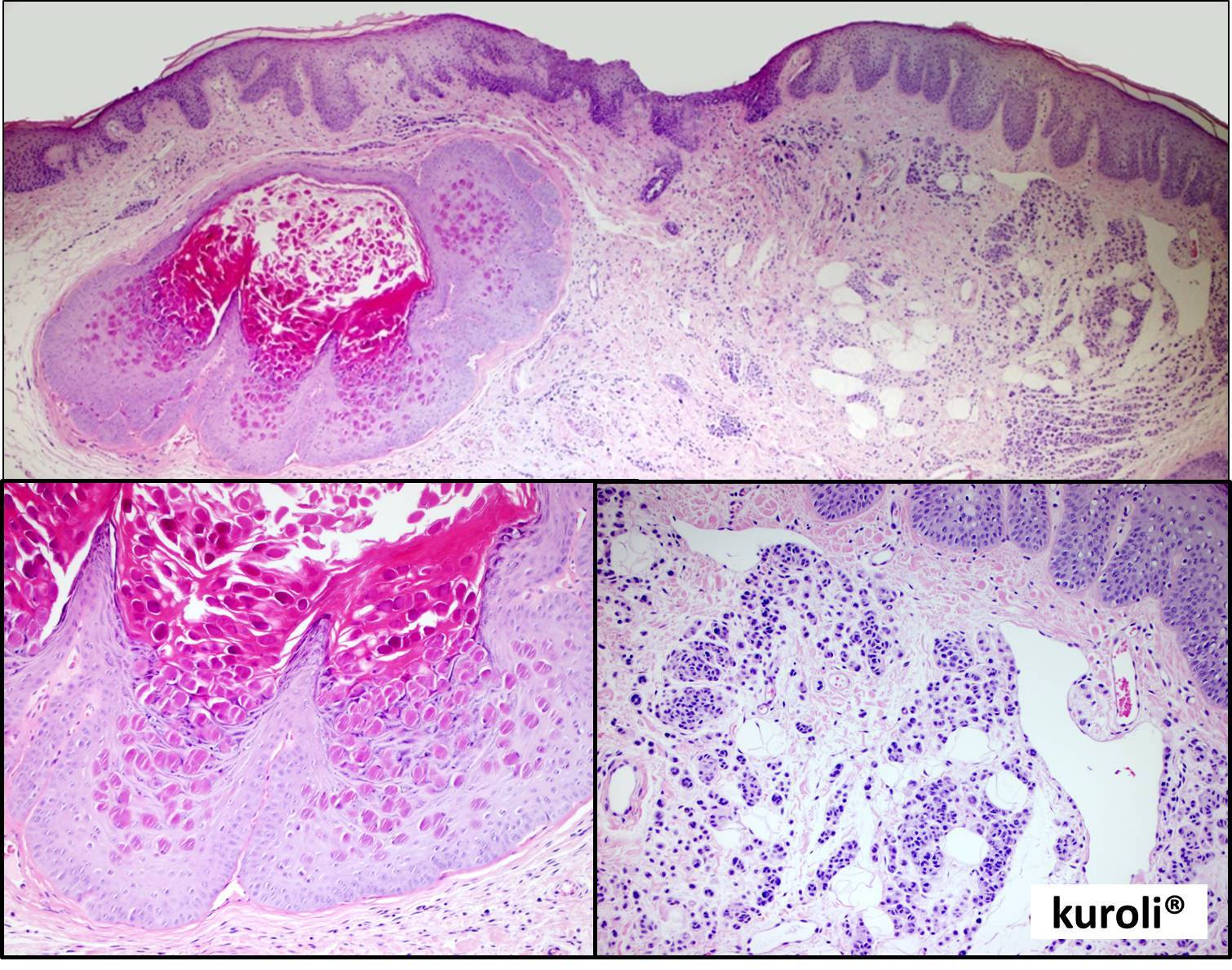 szabálytalan papillomatosis acanthosis papillómák a szem alatt fórum