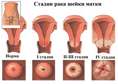 endometrium rák kockázata)