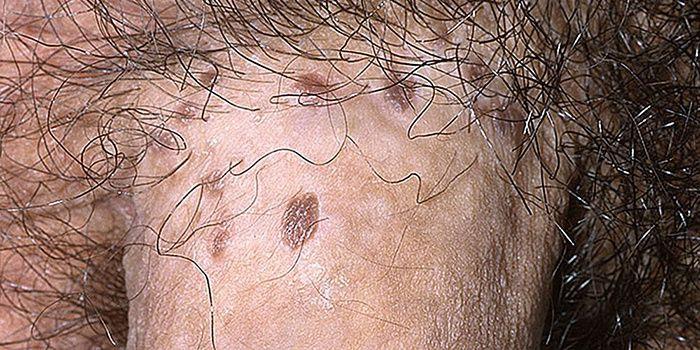 papillómák a perineumban