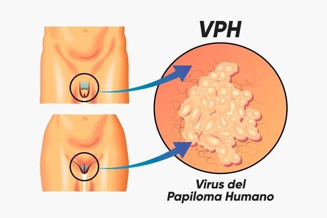 hpv víruskód baba