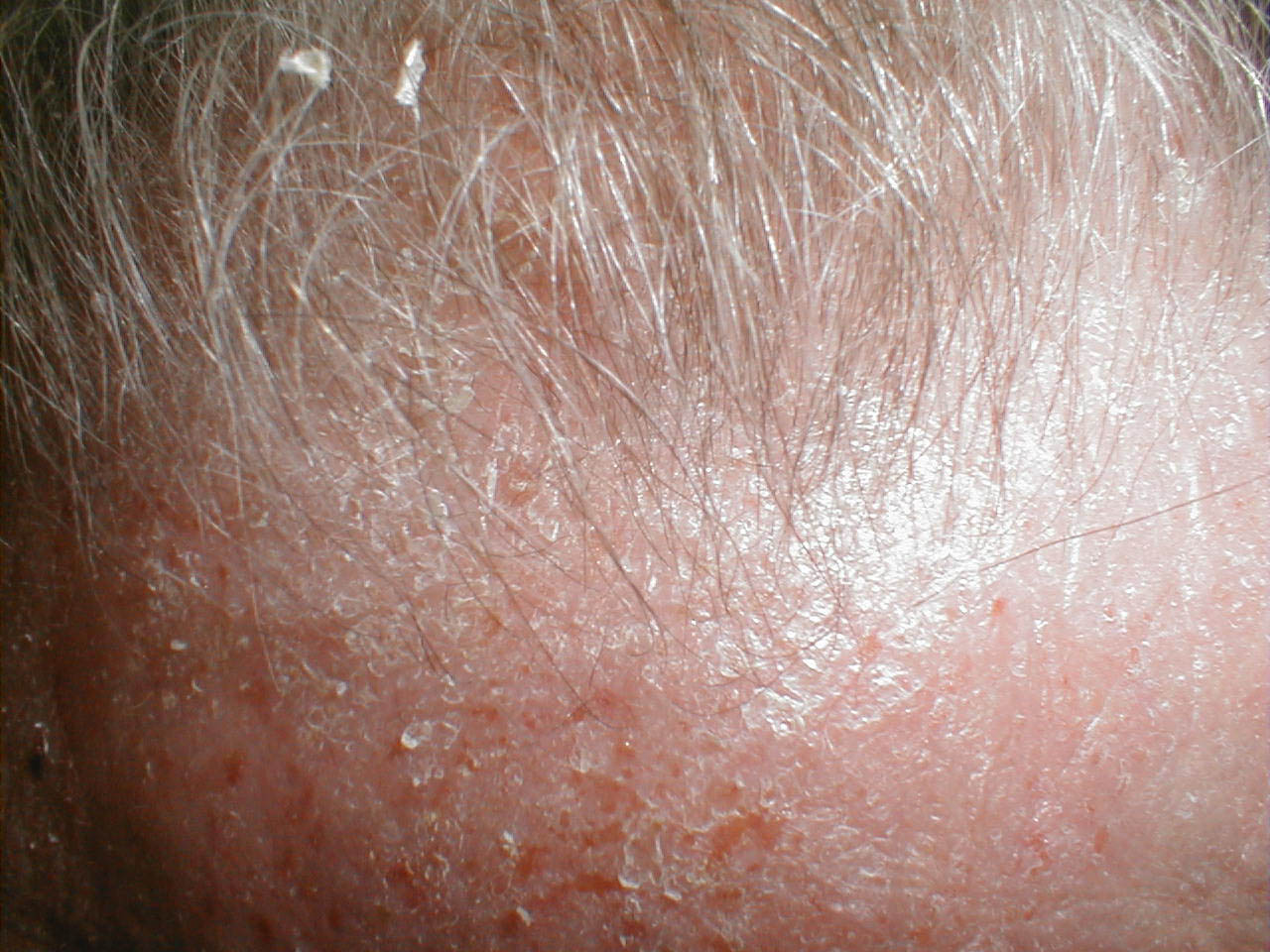 Az atópiás dermatitis - Ezekről mindenkinek tudnia kellene! | BENU Gyógyszertárak