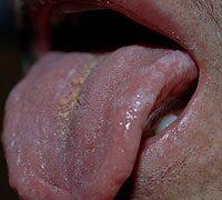 hpv vírus tünetei száj