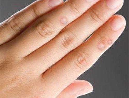 miért vannak a férfiak szemölcsök a kezükön)