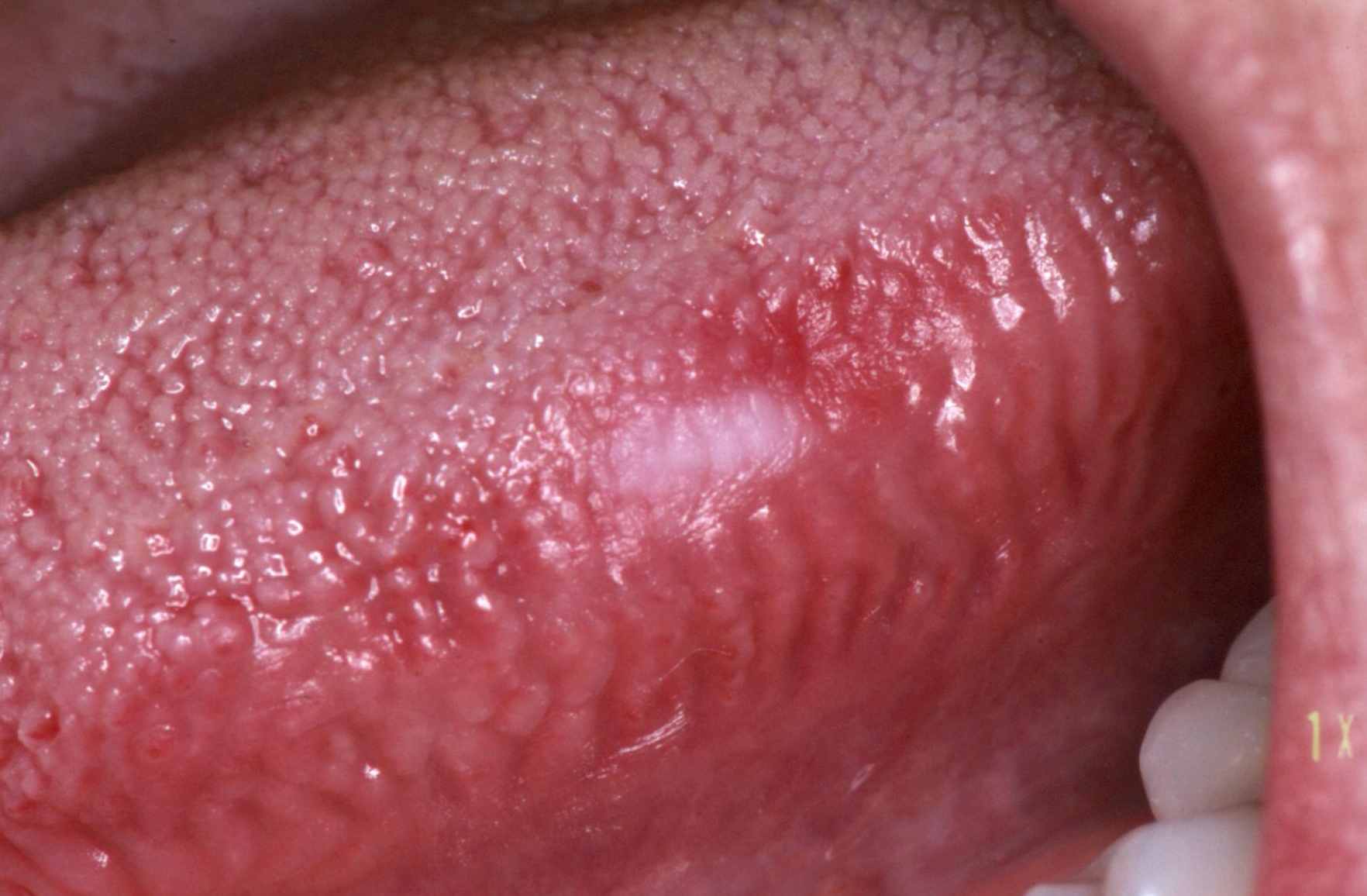 papillomavírus nyelvtünete