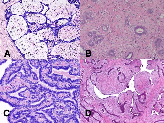 papilloma adenoma)