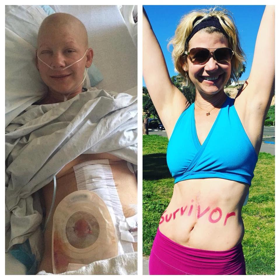 kétszer legyőzni a rákot