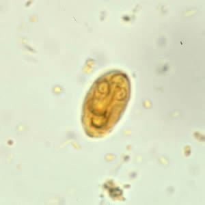 giardiasis betegség)