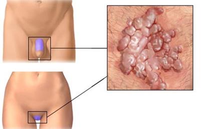 szemölcsök nemi szervek területének kezelése