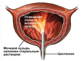 A húgyhólyagrák és tünetei