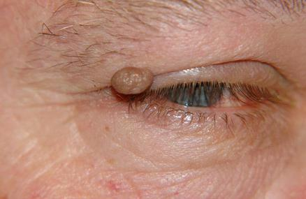 enterobius vermicularis helmintus papilloma vírus elleni vakcina emberben
