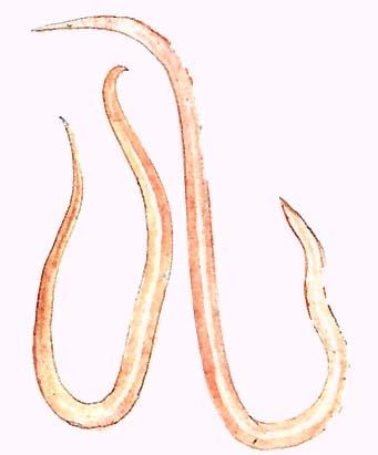 az ember fonálféreg