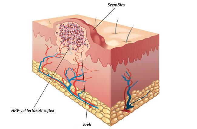 szemölcsök, amelyeket be kell vinni erősen rákkeltő papillomavírus