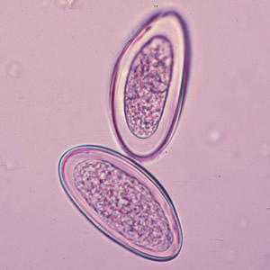 enterobius vermicularis nih tampont)
