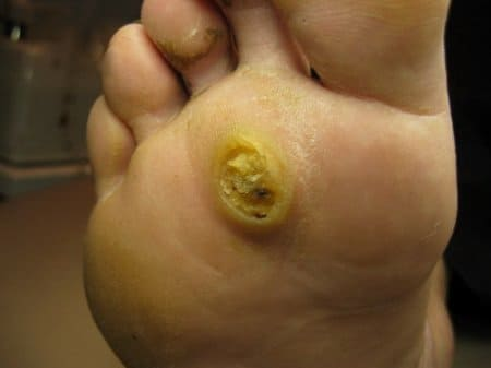 papillomavírusos bőrelváltozások)