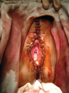 humán condyloma