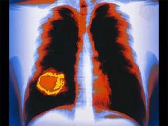 kissejtes tüdőrák