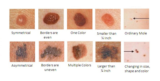korai bőrrák