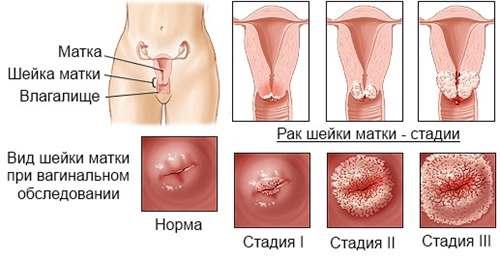 A férfiak és a HPV