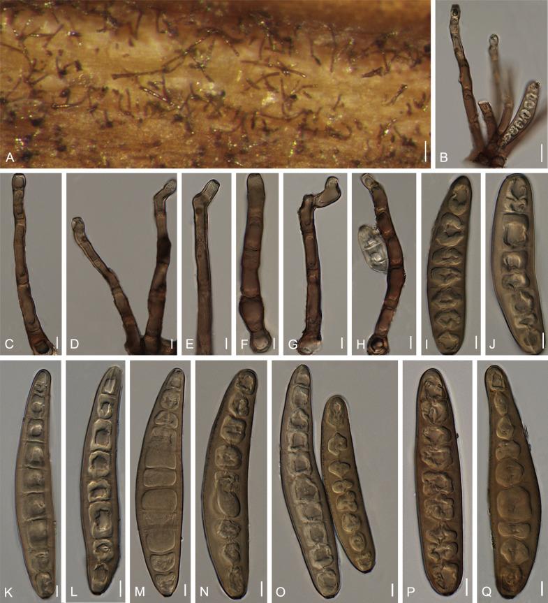nodulosum helminthosporium