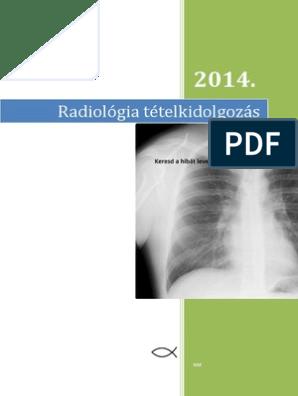 összefolyó és hálózatos papillomatosis kialakulásának kora fordított papilloma tumor