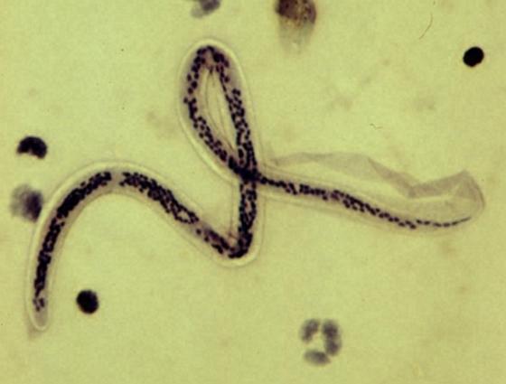 Parazita sejtek. Először sikerült azonosítani