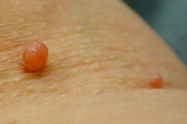 a genitális szemölcsök alvadása az hpv impfung módon aok bayern